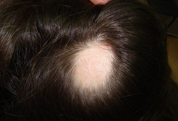 Голова